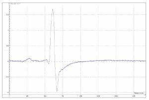 reflexe myotatique electromyogramme